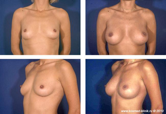 Высота имплантов груди
